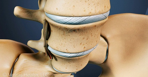 bone-graft-sides-spine