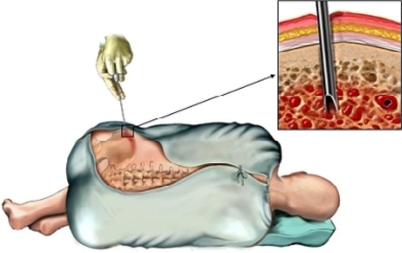 bone_biopsy_pevis