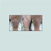 JCID-2373-1044-04-0024-thumbfig1A