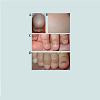 JCID-2373-1044-04-0028-thumbfig3