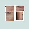 JCID-2373-1044-04-0029-thumbfig2