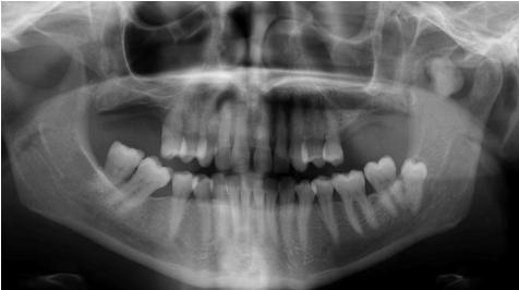 Avens Publishing Group Peripheral Osteoma Unusual
