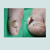 JCID-2373-1044-04-0033-thumbfig1