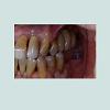 JOBY-2377-987X-03-0027-thumbfig-1