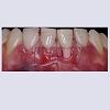 JCMCR-2332-4120-04-0029-thumbfig11