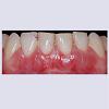 JCMCR-2332-4120-04-0029-thumbfig12