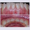 JCMCR-2332-4120-04-0029-thumbfig13