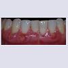 JCMCR-2332-4120-04-0029-thumbfig6