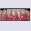 JCMCR-2332-4120-04-0029-thumbfig9